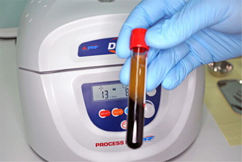 PRF - a material that is obtained from the patient's own blood