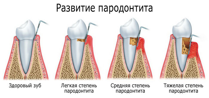 Periodontal treatment in Eurodent, Kyiv